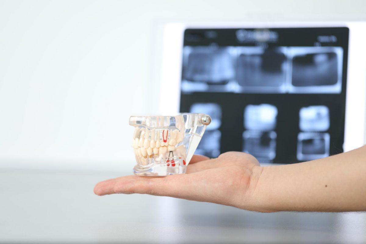 articol-proteze-dentare-1200x800.jpg