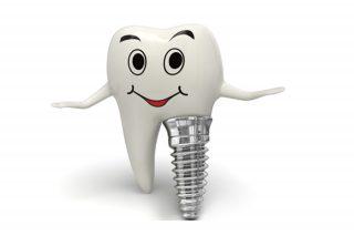 Implant dentar premium. Implant dentar din titan sau zirconiu.