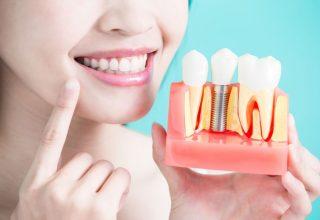 Implant dentar clinica stomatologica sectorul 1.